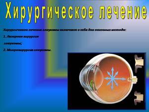 Хирургическое лечение глаз - операция глаукомы