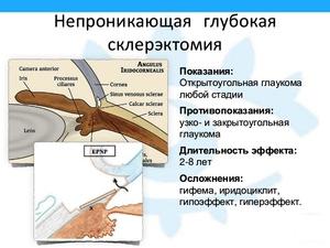 Что такое склерэктомия, как ей лечат глаукому