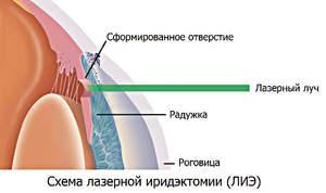 Как работает лазерная иридэктомия