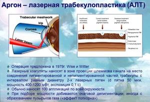 Что такое лазерная трабекулопластика