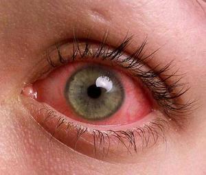 Красные глаза у больного человека