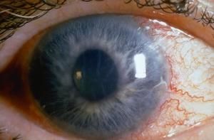 Востановление зрения после операции