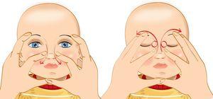 Массаж при дактериоцистите у новорожденных
