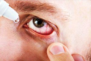 Фармакологическое действие глазных капель Эмоксипин