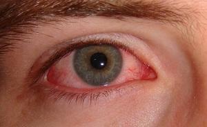 Показания для применения глазных капель Эмоксипин