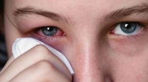 Показания к применению глазных капель Индоколлир