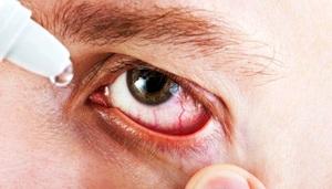 Инструкция по применению глазных капель Индоколлир