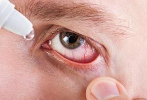 Показания и противопоказания к применению Тропикамида для глаз