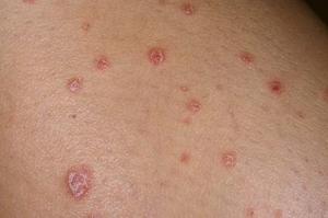 Противопоказана при кожных болезнях, таких как псориаз, экзема и т. д.