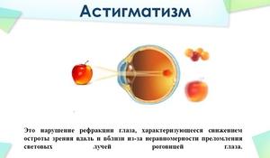 Продукты для улучшения зрения при дальнозоркости