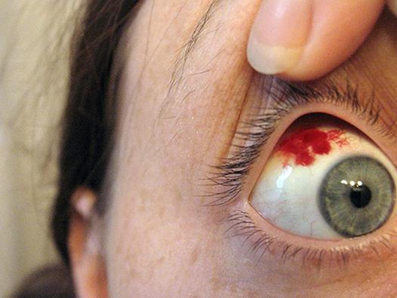 Как вылечить синяки на глазах в домашних условиях